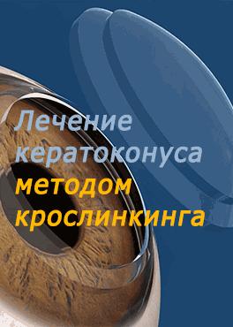 Лечение кератоконкуса методом кросслинкинга